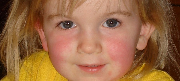 Little girl with scarlet fever